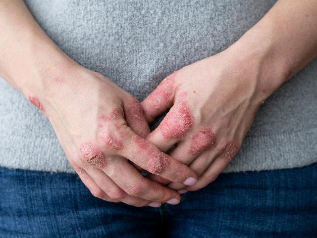 psoriasis y calidad de vida