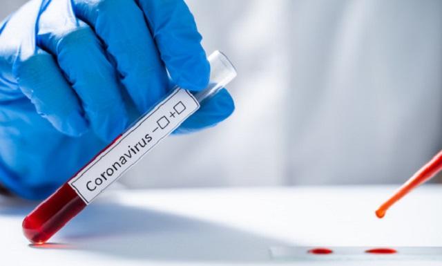 segundo-estudio-seroprevalencia-coronavirus