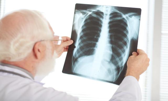 Tomosíntesis de Pulmones