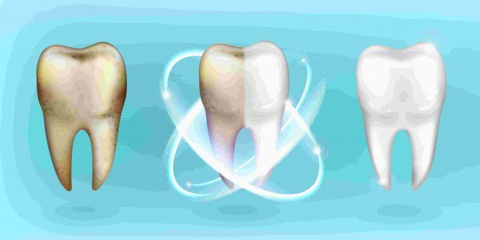 evitar dientes amarillos