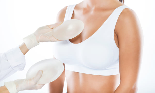 Implante mamario relacionado con LACG